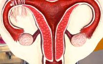 Форма и размер яичников в норме у женщин разных возрастов