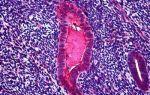 Онкомаркер яичников СА 125 – его значение и расшифровка