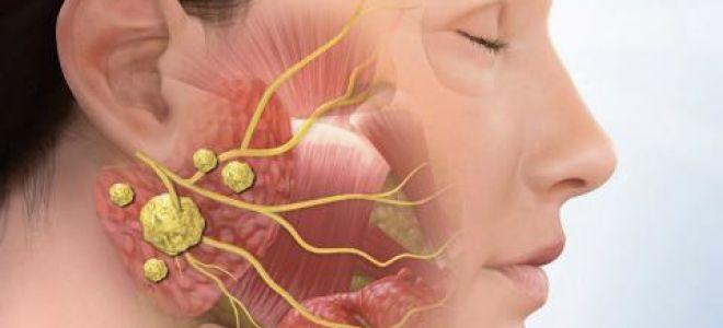 Сиалолитиаз подчелюстной зоны: причины, профилактика, диагностика, лечение