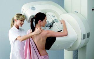 Маммография молочных желез или УЗИ: современные диагностические методики