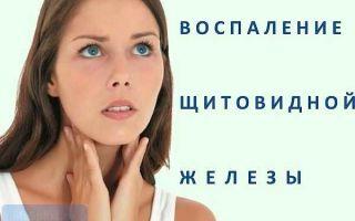 Тиреоидит симптомы и классификация