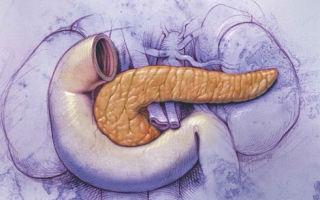 Причины и лечение атрофии поджелудочной железы