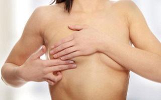 Что такое липома молочной железы: разновидности и способы лечения