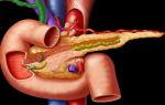 Летальный исход при панкреатите