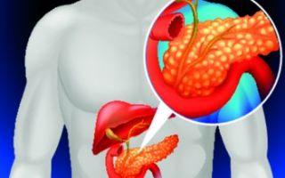 Что делать при воспалении поджелудочной железы?