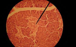 Бета-клетки поджелудочной: особенности, антитела к клеткам