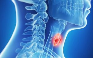 Причины и симптомы уменьшения щитовидной железы