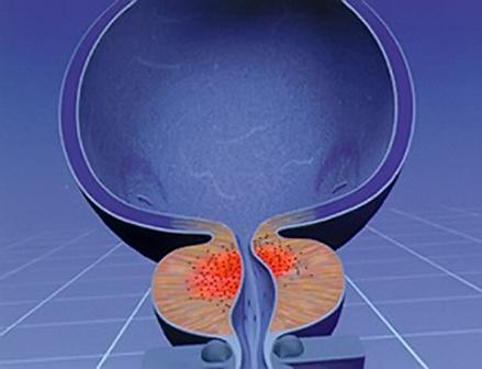 Диффузные изменения паренхимы предстательной железы – что это такое