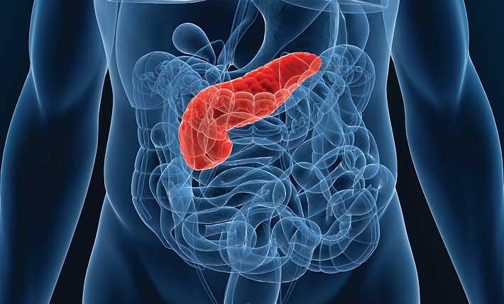 Что такое острый панкреатит и как его лечить