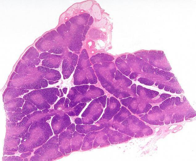 Симптомы вилочковая железа у взрослых