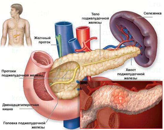 смерть от панкреатита