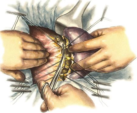 киста поджелудочной железы симптомы и лечение