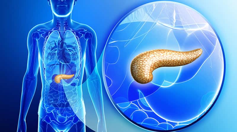 Как распознать и лечить панкреатит