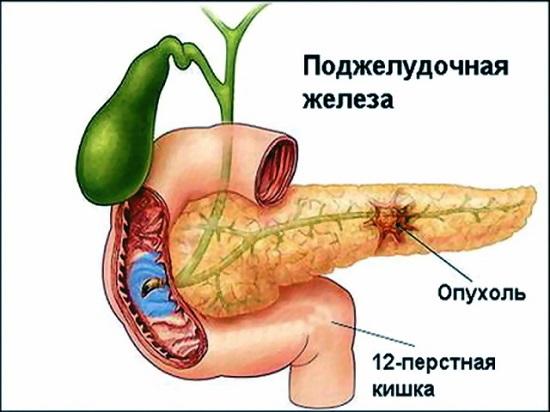 Рак 4 стадии с метастазами сколько живут Своевременное лечение