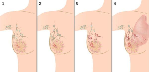 рак молочной железы 2 степени