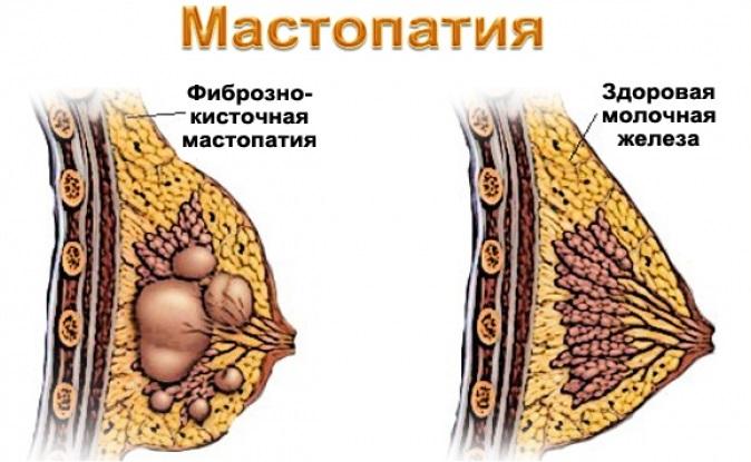 боль в молочной железе слева у женщин