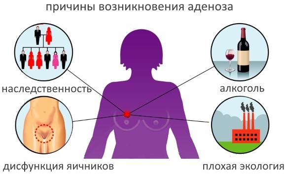 аденоз молочных желез что это такое