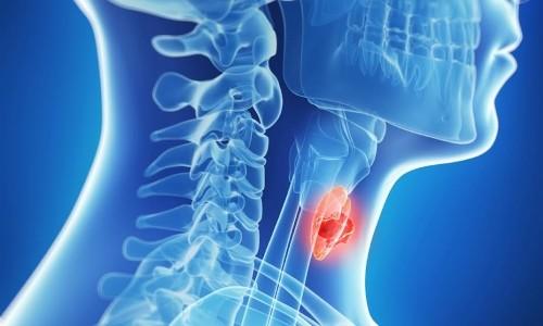 Нормальные размеры щитовидной железы у женщин