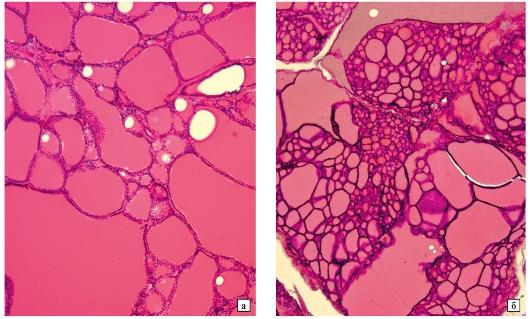тиреоидит щитовидной железы