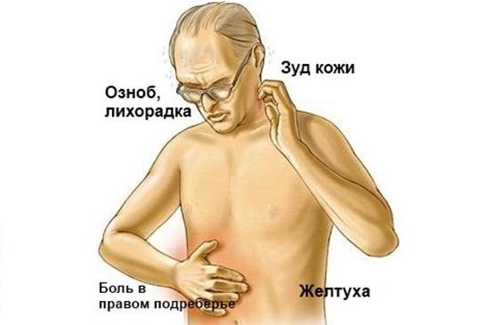 рак поджелудочной железы симптомы