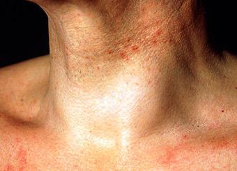 Щитовидная железа симптомы заболевания у женщин фото и лечение