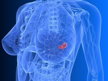 Причины возникновения фиброаденомы молочной железы