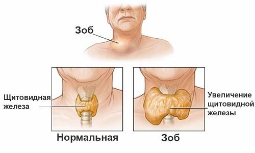 зоб щитовидной железы что это такое