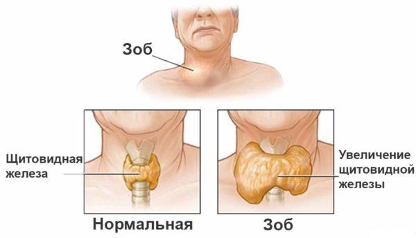болезнь грейвса