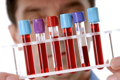 Как и когда нужно сдавать анализ на гормоны щитовидной железы