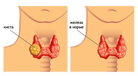 киста щитовидной железы что это такое как лечить