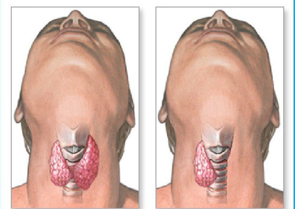 лечение щитовидки йодом