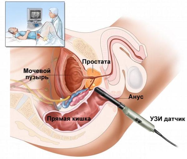 узи предстательной железы как проводится