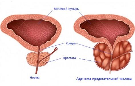 Лечение предстательной железы у мужчин
