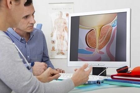УЗИ как эффективный способ обнаружения простатита