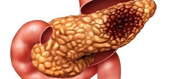 фибролипоматоз и липофиброз поджелудочной железы