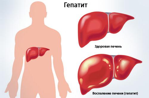 Болезни печени и поджелудочной железы