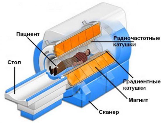 МРТ предстательной железы