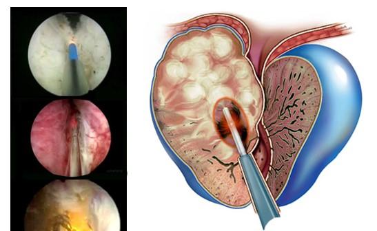 операция на предстательной железе