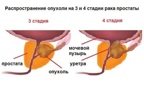 рак предстательной железы 3 степени