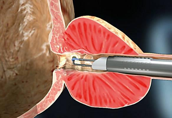 трансуретральная резекция предстательной железы