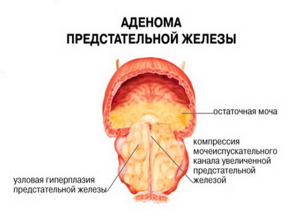 Операция по удалению аденомы простаты возможные последствия