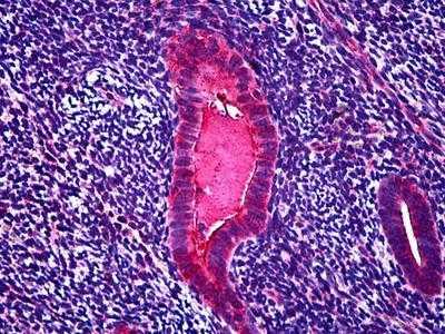 Онкомаркер яичников СА 125 норма и отклонения