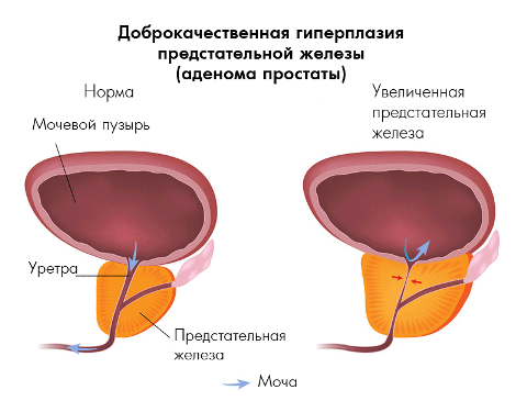 дисплазия предстательной железы