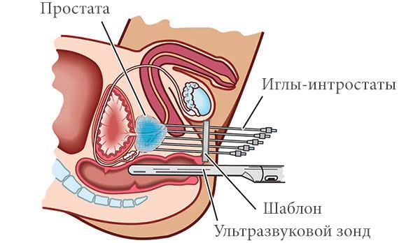 брахитерапия предстательной железы