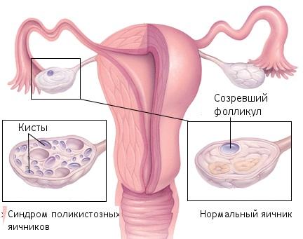 Поликистоз яичников и беременность