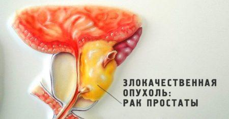 Гормонотерапия при раке предстательной железы