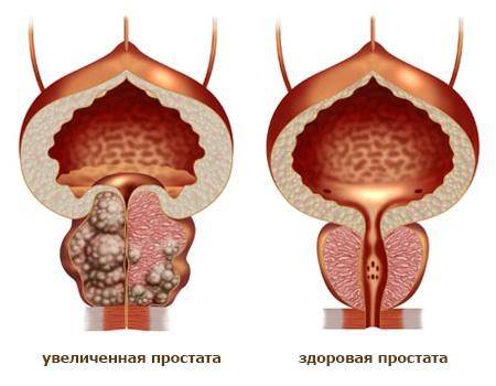 Трансабдоминальное узи предстательной железы