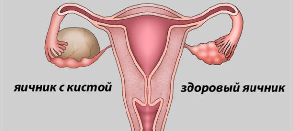 Таблетки от кисты яичника
