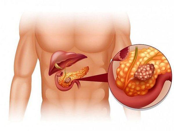 кисты поджелудочной железы лечение народными средствами