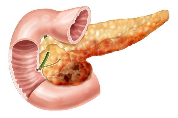 МРТ и КТ поджелудочной железы